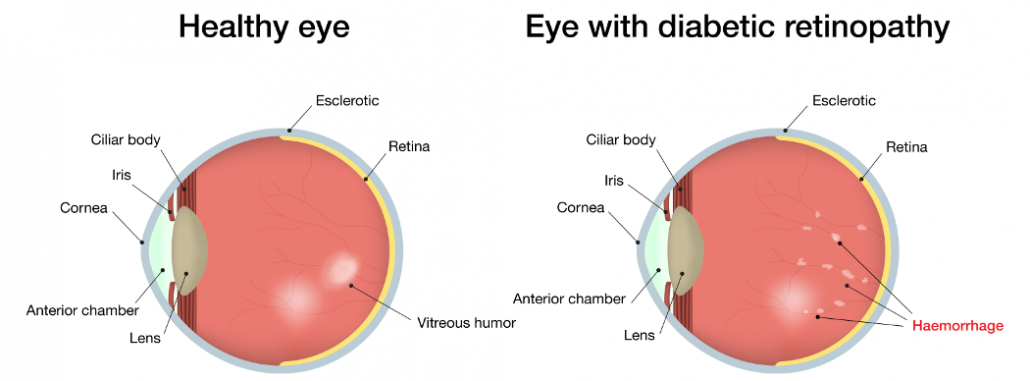 Eye damage (Retinopathy)