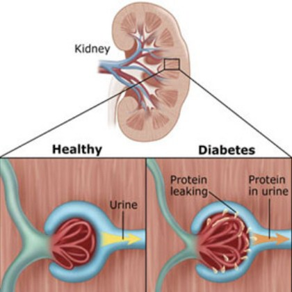 Kidney damage (nephropathy)
